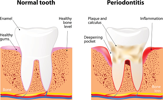The importance of Periodontal Maintenance is shown through a Periodontal Disease Diagram